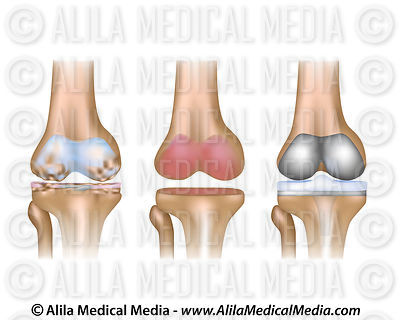 Alila medical media orthopaedics sport medicine images videos total knee replacement surgery unlabeled ccuart Gallery