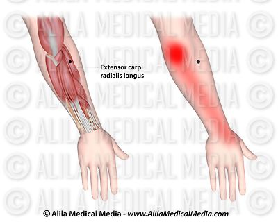 Trigger points and referred pain for the extensor carpi radialis longus