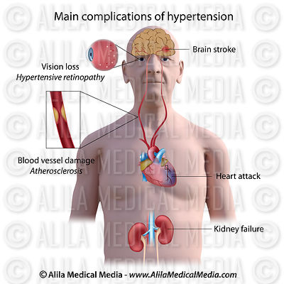 Hypertension complications, labeled
