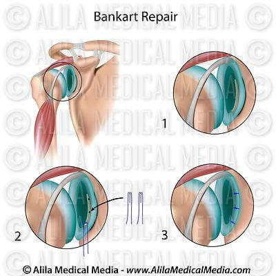 Shoulder stabilization surgery