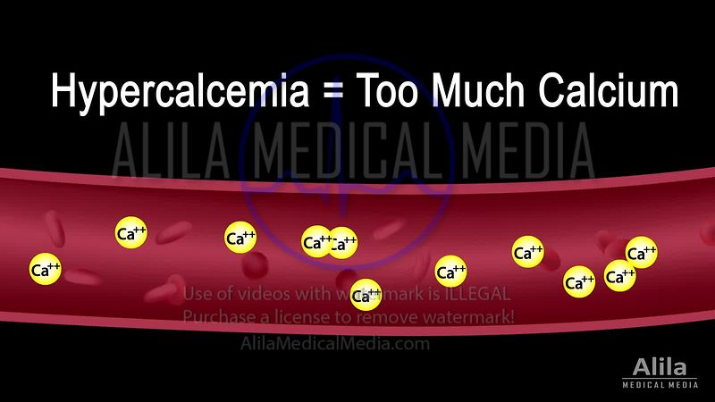 Hypercalcemia NARRATED animation