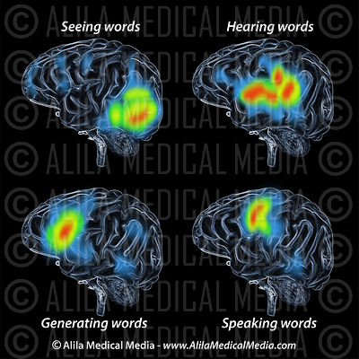 PET scan of brain during speech