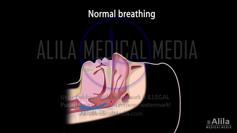 Snoring and sleep apnea video with text