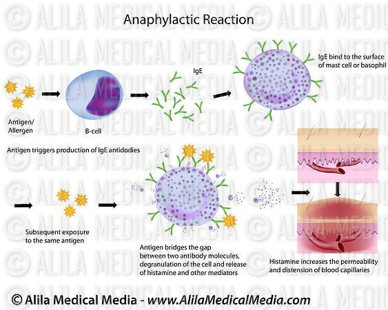 Mechanism of allergy (drug,hay fever, asthma)