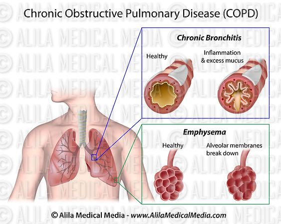 Obstructive lung disease