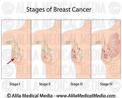 Breast Cancer stages diagram.