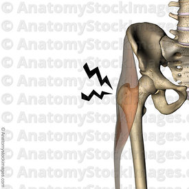 hip-greater-trochanteric-pain-syndrome-painlocation-anatomy-trochanter-major-iliotibial-band