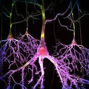 Neurons; pyramidal cells #1b