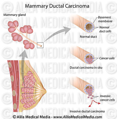 Mammary ductal carcinoma breast cancer