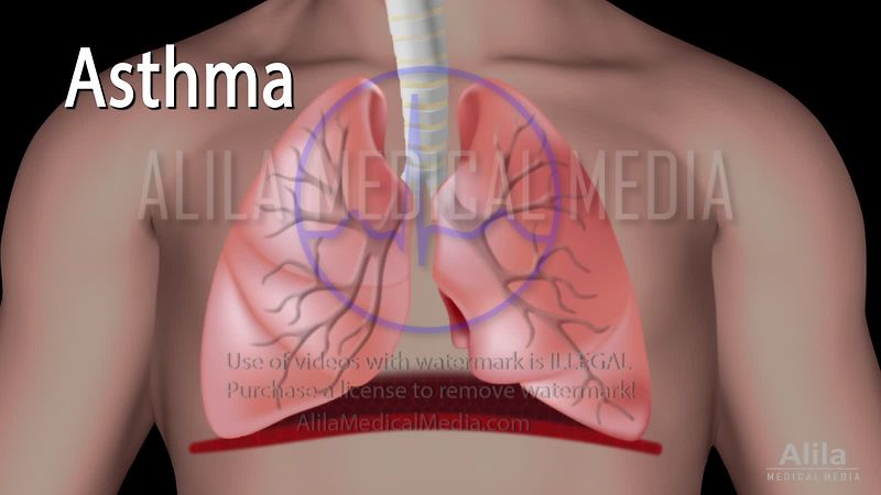 Asthma NARRATED animation.