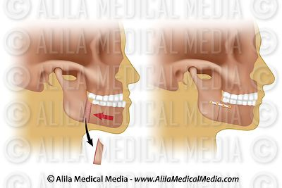 Corrective surgery for protruding lower jaw (v2)