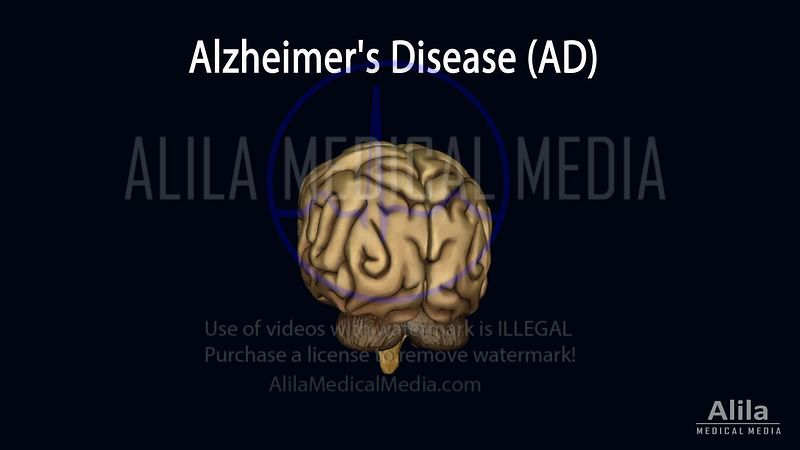 Alzheimer's disease (AD), NARRATED animation.