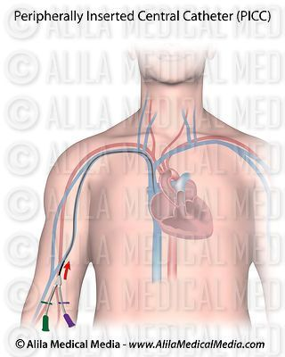 Peripherally inserted central catheter