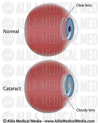 Eye disease - Cataract