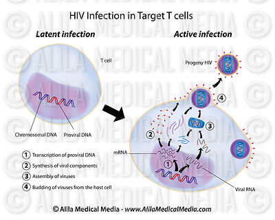 Infection latente et active par le VIH