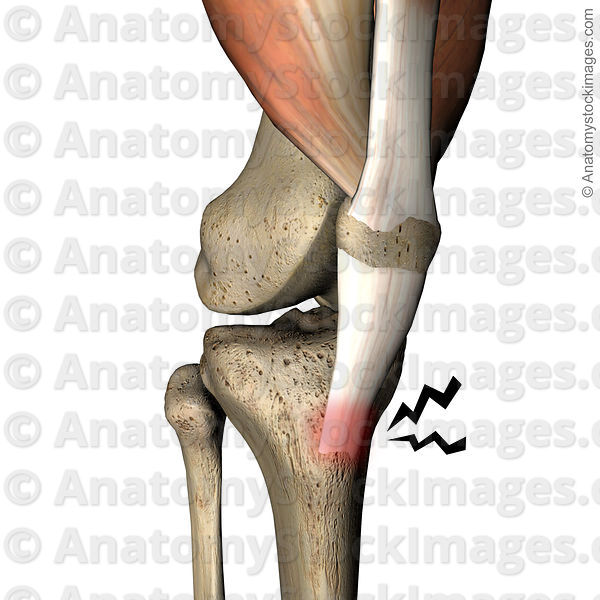 Anatomy Stock Images | knee-osgood-schlatter-pain-patellar-ligament ...