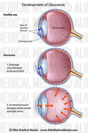 Alila medical media eye anatomy labeled diagram medical illustration stages of glaucoma a common eye disease eye anatomy labeled diagram ccuart Choice Image