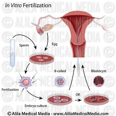 In Vitro Fertilization (IVF) procedure, labeled diagram.