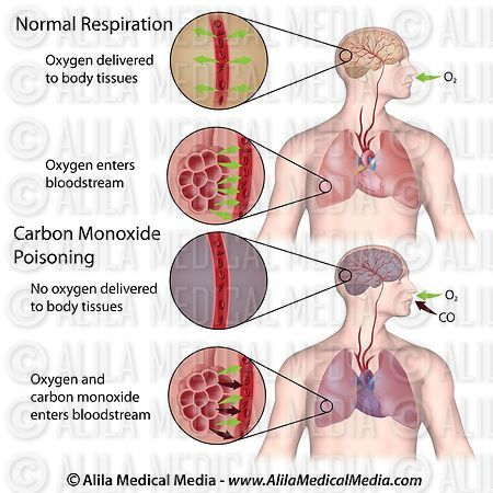 an analysis of the effects of carbon monoxide poisoning