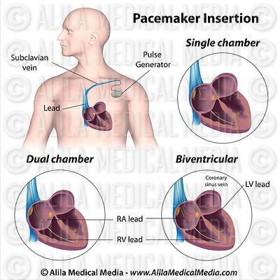 Pacemaker implantation, labeled diagram.