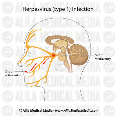 Herpesvirus infection (cold sores)