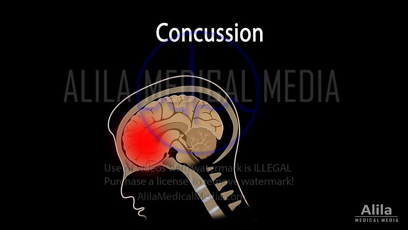 Concussion NARRATED animation