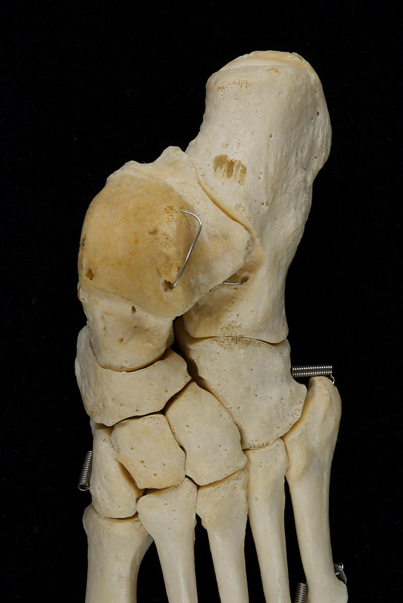 Left foot articulated dorsal view, close-up