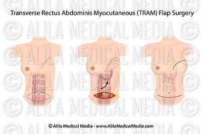 Pediculada TRAM flap