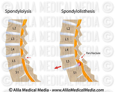 spondylolisthesis stenosis