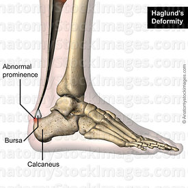 ankle-haglund-s-deformity-calcaneus-redness-prominence-retrocalcaneal-bursa-retrocalcanea-lateral-skin-names