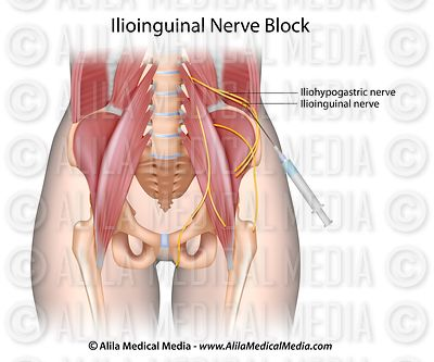 Bloqueio do nervo ilioinguinal