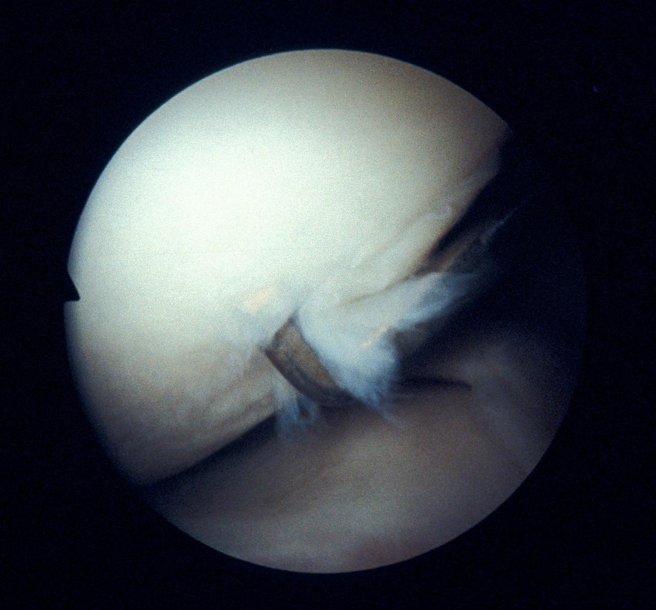 Osteoartritis of the femoral condyle showing fibrillation, softening and damage to the chondral surface. Stage III