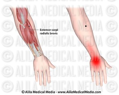 Trigger points and referred pain for the extensor carpi radialis brevis