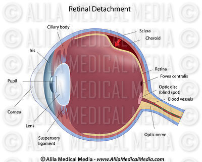 Eye retinal detachment labeled diagram.