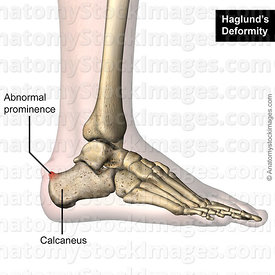 ankle-haglund-s-deformity-calcaneus-redness-lateral-skin-names