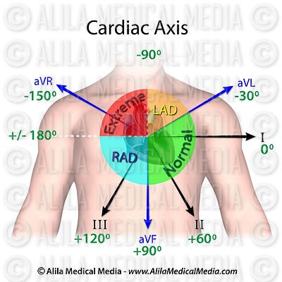 Cardiac axis diagram
