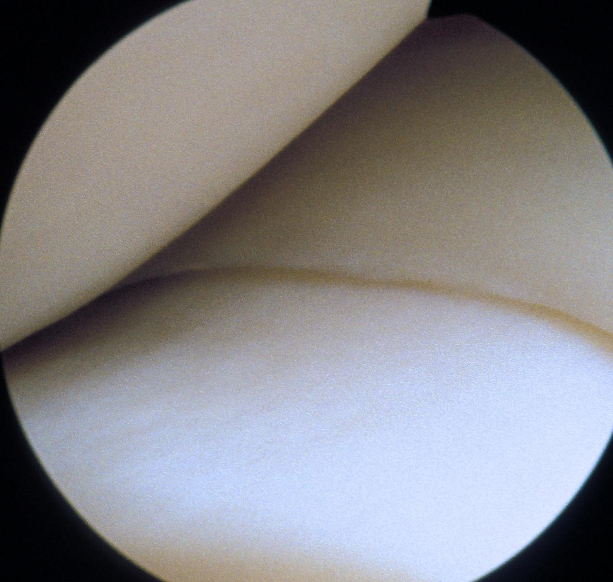Clean knee showing femoral condyle, meniscus and tibial plateau