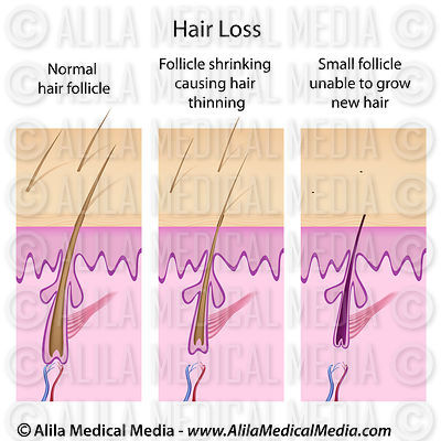 Hair loss process.