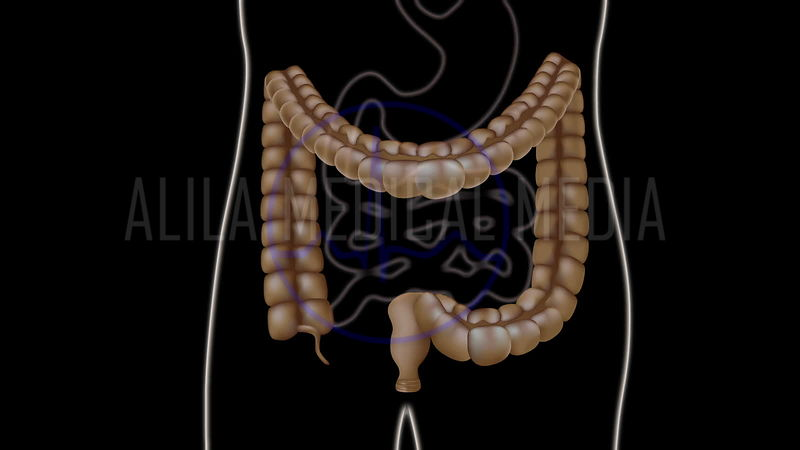 Colonoscopy procedure animation.