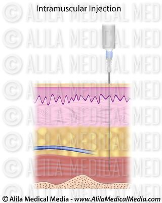 Intramuscular (IM) injections