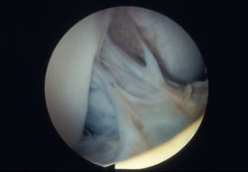 View of the intercondylar notch following repair to anterior cruciate ligament with Surgicraft ABC carbon fibre polyester ligament, follow-up arthroscopy.