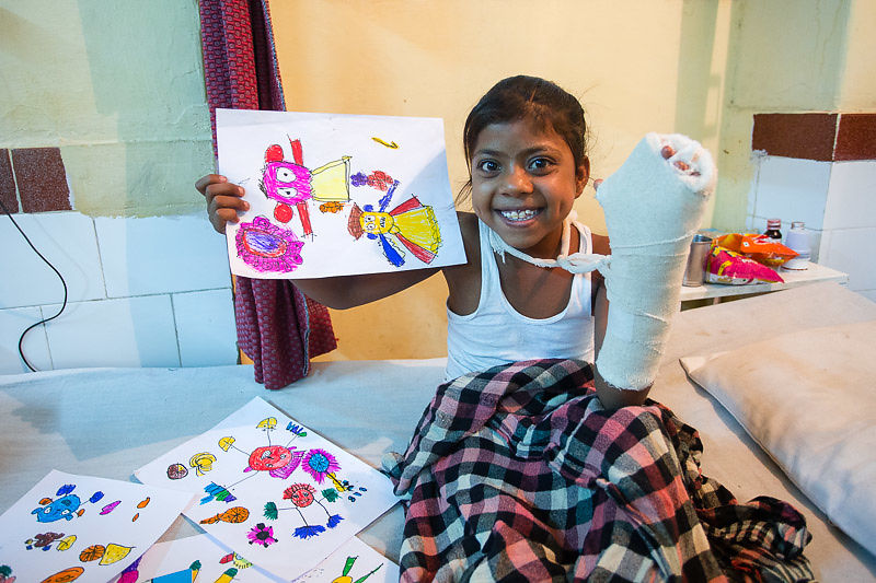 We facilitated surgery for our student Chand, whose hand was burned