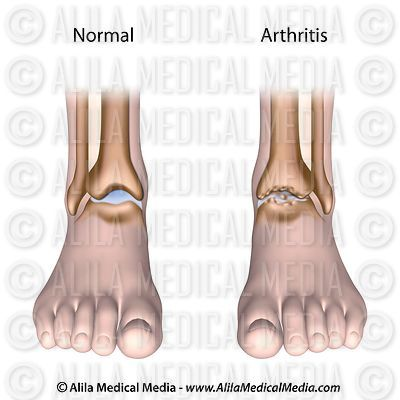 Arthritic ankle diagram