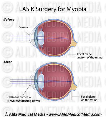 Before and after LASIK surgery