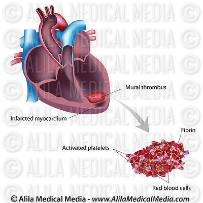 Mural thrombus after heart attack