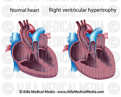 Right ventricular hypertrophy