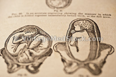 Embryology, Pregnancy, and Delivery Embryologies