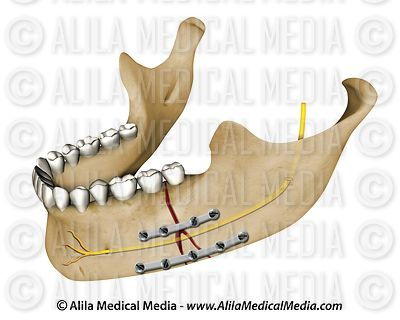 Mandibular fracture treatment