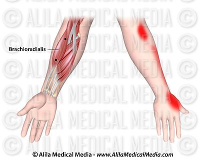 Trigger points and referred pain for the brachioradialis