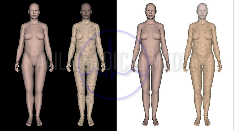Slimming video, CG 3D model